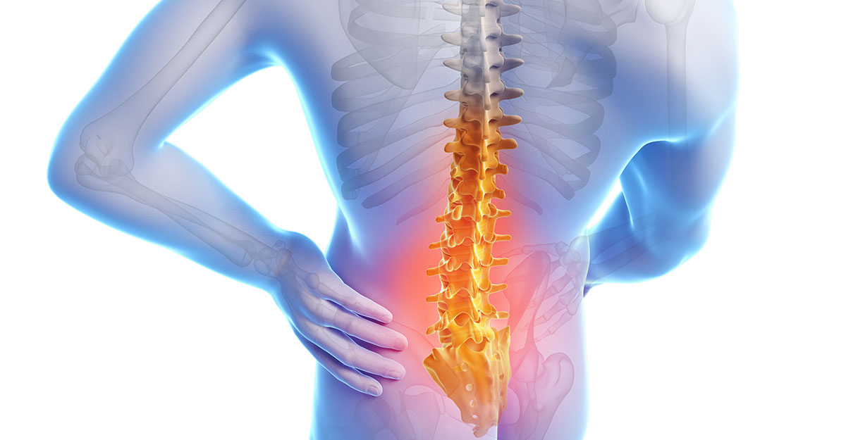North County St. Louis, MO Back Pain Treatment without Surgery