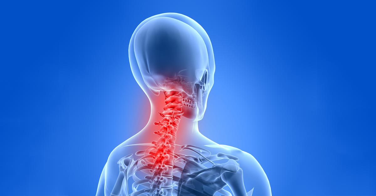 North County St. Louis, MO car accident and neck pain treatment