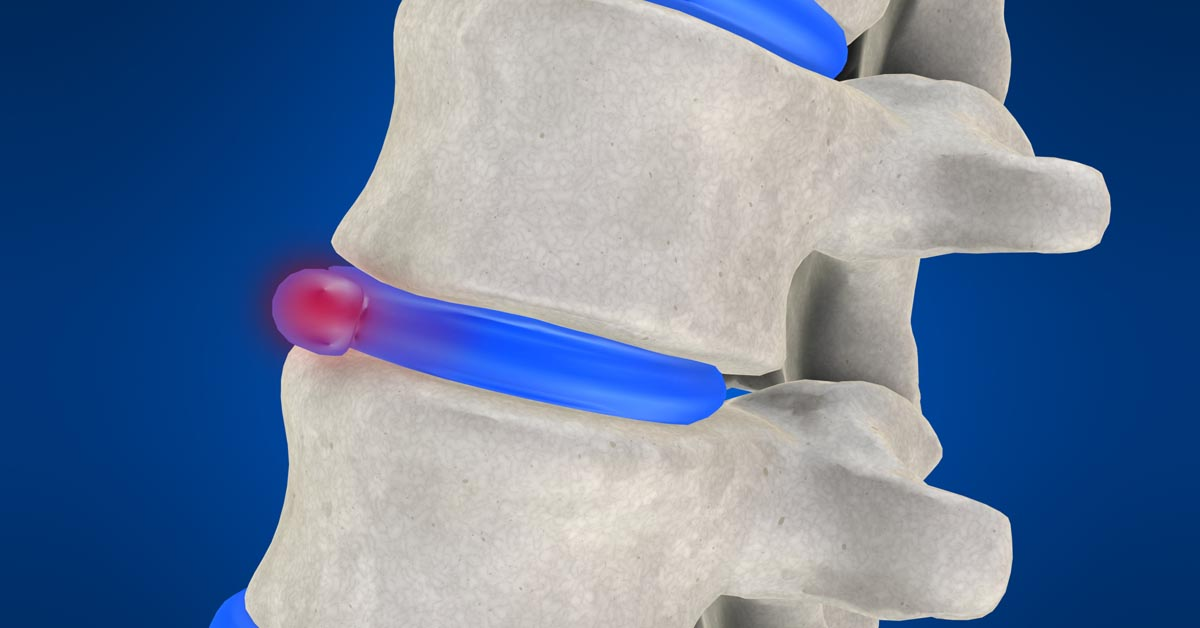 North County, St. Louis, MO non-surgical disc herniation treatment