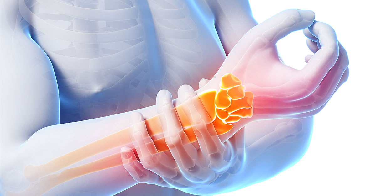 North County St. Louis, MO natural carpal tunnel treatment