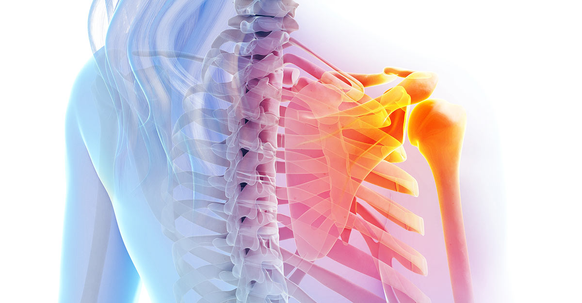 North County St. Louis, MO shoulder pain treatment and recovery